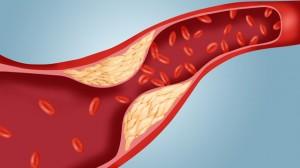 gty_atherosclerosis_cholesterol_plaque_artery_ll_111114_wmain